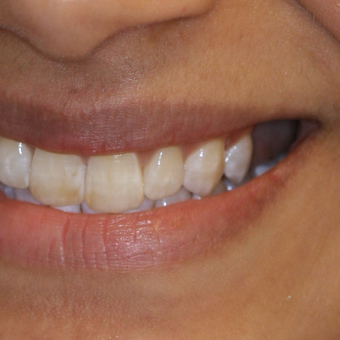 Replacing missing teeth with dental implants
