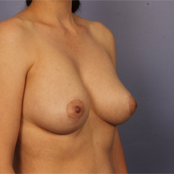 35-44 year old woman treated with Breast Fat Transfer