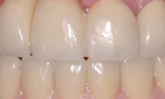 75 and up year old man treated with Dental Crown after 3804965