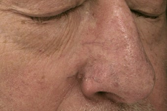 nose vessels treated with pulsed dye laser (PDL) before 821610