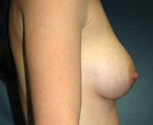 Breast Implants after 3545100