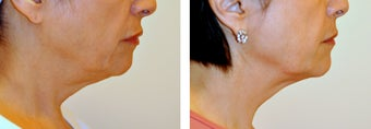 63 Year Old Female Treated with Ultherapy for sagging neck before 996277