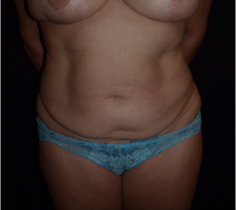 52 year old woman treated with Tummy Tuck and Liposuction before 3676626
