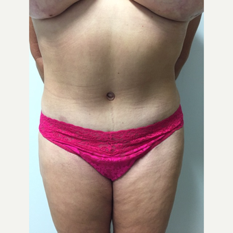 52 year old woman treated with Tummy Tuck and Liposuction after 3676626
