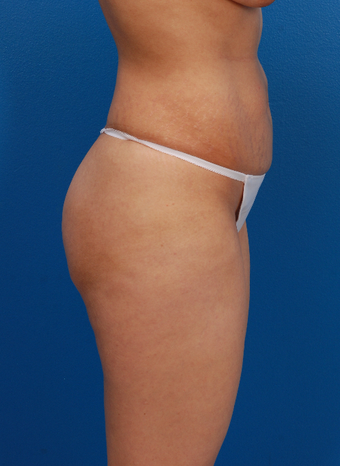 35-44 year old woman treated with Tummy Tuck 1566564