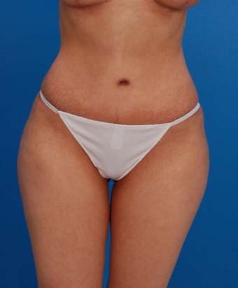 35-44 year old woman treated with Tummy Tuck after 1566564