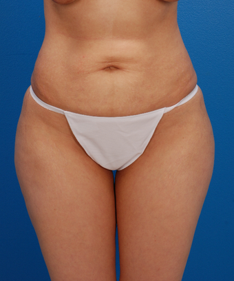 35-44 year old woman treated with Tummy Tuck before 1566564