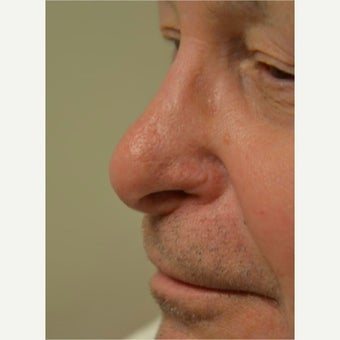 55-64 year old man treated with Mole Removal/ Skin Cancer removal and reconstruction after 1966434