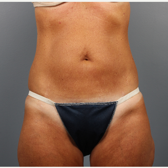 55-64 year old woman treated with CoolSculpting before 3507579