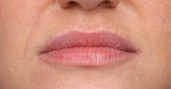 35-44 year old woman treated with Lip Augmentation after 3838976