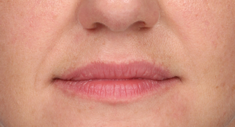 35-44 year old woman treated with Lip Augmentation before 3838976