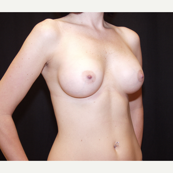 35-44 year old woman treated with Breast Implants after 3602944