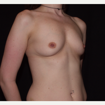 35-44 year old woman treated with Breast Implants before 3602944