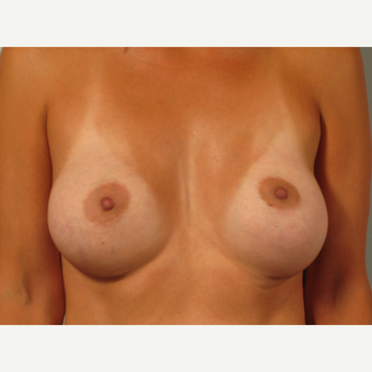 35-44 year old woman treated with Breast Augmentation after 3261163