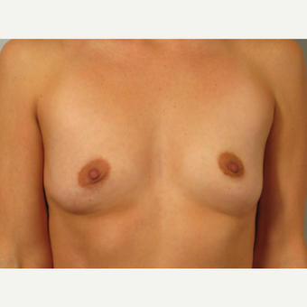 35-44 year old woman treated with Breast Augmentation before 3261163