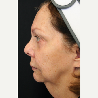 67 year old woman treated with Face & Neck Lift before 3701687
