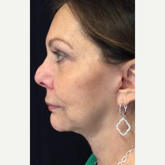 67 year old woman treated with Face & Neck Lift after 3701687