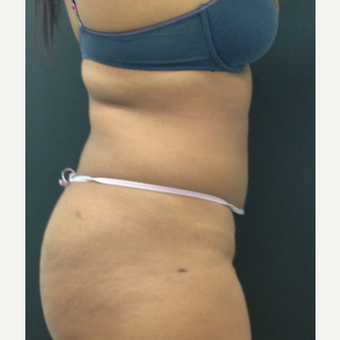 25-34 year old woman treated with Liposuction after 3225732