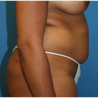 25-34 year old woman treated with Liposuction before 3225732