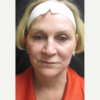 55-64 year old woman treated with Facelift before 3088485