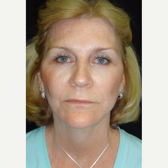 55-64 year old woman treated with Facelift after 3088485