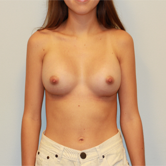 18-24 year old woman treated with Breast Augmentation after 3162953