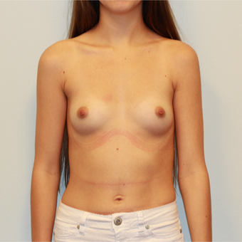 18-24 year old woman treated with Breast Augmentation before 3162953