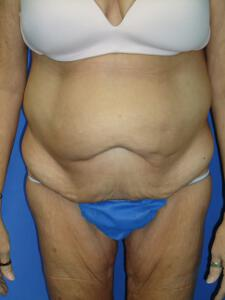 Circumferential Tuck before 863774