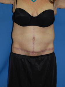 Circumferential Tuck after 863774