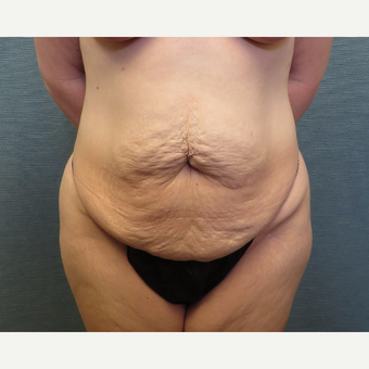 35 year-old woman treated with Tummy Tuck before 3538915
