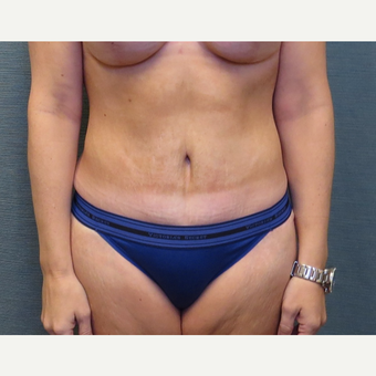 35 year-old woman treated with Tummy Tuck after 3538915