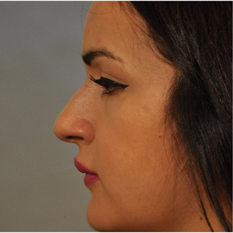 18-24 year old woman treated with Nose Surgery before 3332888