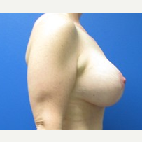 40 year old woman breastlift with augmentation after 3371079