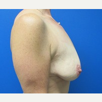 40 year old woman breastlift with augmentation before 3371079
