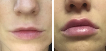 35-44 year old woman treated with Juvederm before 3842754