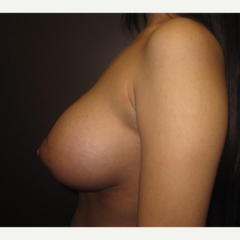 18-24 year old woman treated with Breast Lift with Implants after 3305517