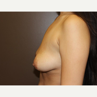 18-24 year old woman treated with Breast Lift with Implants before 3305517