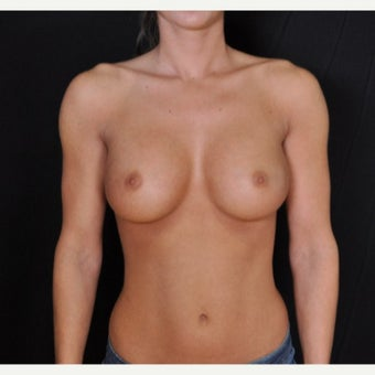 Fiberopic Transaxillary Dual Plane No-Scar on the Breast Technique
