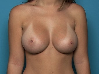 Breast Augmentation after 141135