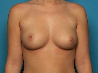 Breast Augmentation before 141135