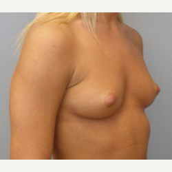 25-34 year old woman treated with Breast Implants before 3108547