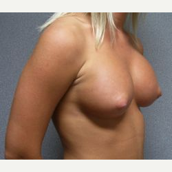 25-34 year old woman treated with Breast Implants after 3108547