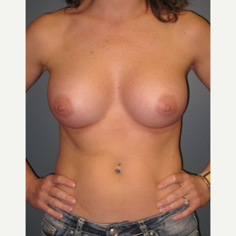 35-44 year old woman treated with Breast Augmentation after 3523663