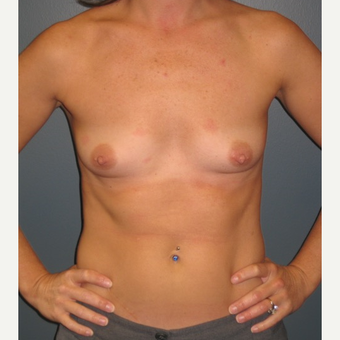 35-44 year old woman treated with Breast Augmentation before 3523663