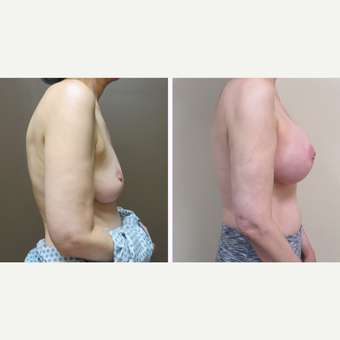 55-64 year old woman treated with Breast Augmentation before 3300024
