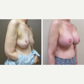 55-64 year old woman treated with Breast Augmentation after 3300024