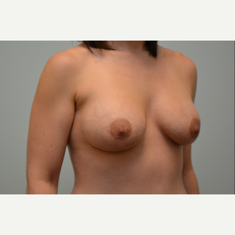 Breast augmentation with 245cc Natrelle Gel Anatomically-Shaped implants after 3009923