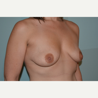Breast augmentation with 245cc Natrelle Gel Anatomically-Shaped implants before 3009923