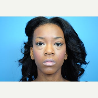 25-34 year old woman treated with Eyelid Surgery before 1576129