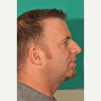 25-34 year old man treated with Rhinoplasty before 3237502